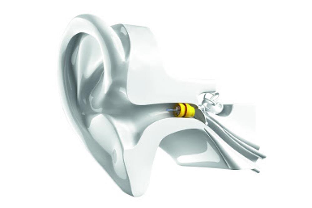Lyric - Apparecchio acustico invisibile . Mondial Udito
