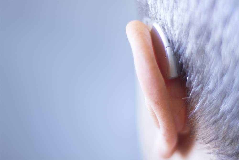 Apparecchio udito